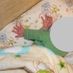 kudikiu kineziterapija, Peties rezginio pazeidimas1