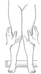 X formos keliu deformacija_diagnostika